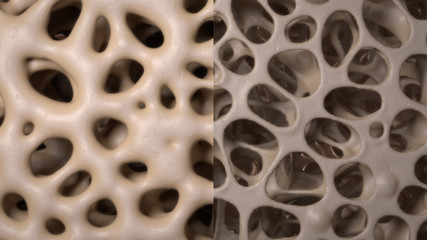 3D CG rendered image of healthy / osteoporosis bone micro structure