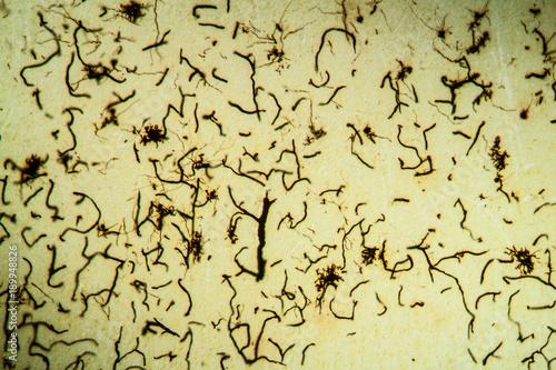 Histologie kleinhirn cerebellum dendritenbaumen im
