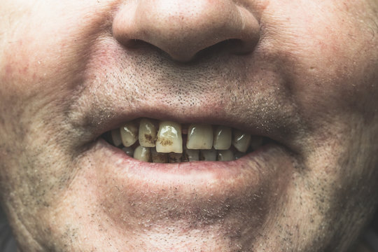 Smiling mouth of smoker with yellow crooked teeth and tartar