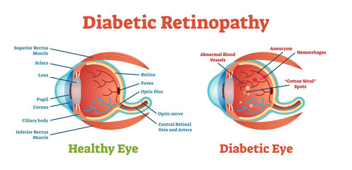 Diabetic Retinopathy vector illustration diagram, anatomical scheme.