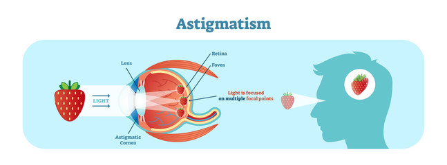 Astigmatism vector illustration diagram, anatomical scheme.