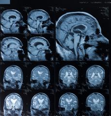 Head MRT. MR image of human brain