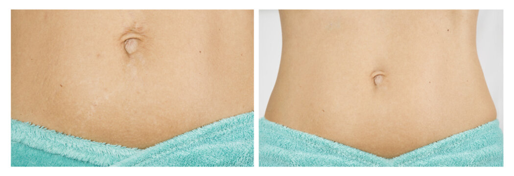 female abdomen before and after treatment of stretch marks on skin