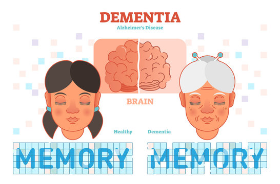 Dementia or alzheimer's disease concept vector illustration diagram with young and old woman.