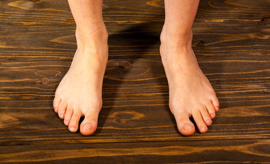 young girl steppe feet with itchy feet uses his big toe to scratch his other foot on wooden floor. Wall mural