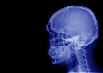 X-ray image of side view asian skull black and white