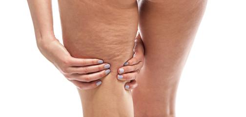 Cellulite on female legs.