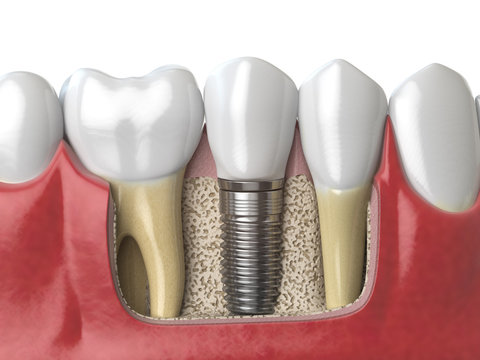 Anatomy of healthy teeth and tooth dental implant in human dentura.