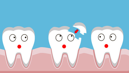 tooth fracture, filling, teeth, trauma, vector