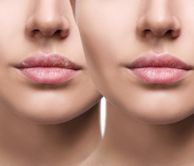 Lips with herpes before and after treatment.