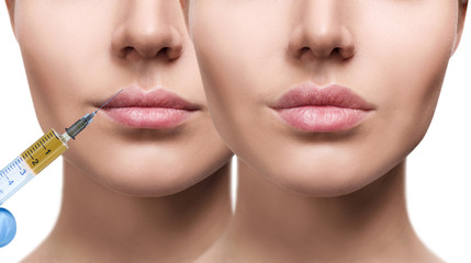 Woman before and after lips filler injections.