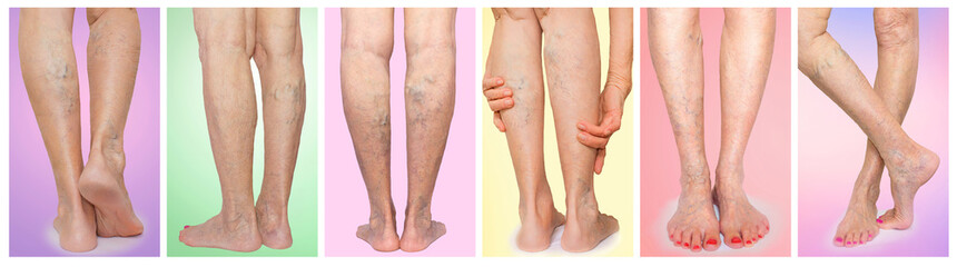 The female legs with veins varicose spider. Collage