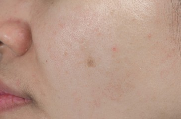 Acne spot on face skin of Asian woman. Concept before face laser treatment for get rid of dark spot post-acne.