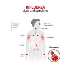Influenza. Signs and symptoms