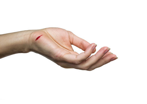 hand with a cut