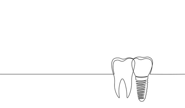 Single continuous line art anatomical human tooth silhouette implant. Healthy medicine recovery molar root cavity concept design world oral health day one sketch outline drawing vector illustration