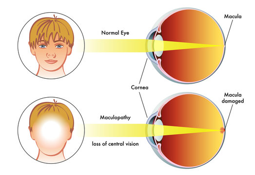 vector medical illustration of the symptoms of maculopathy