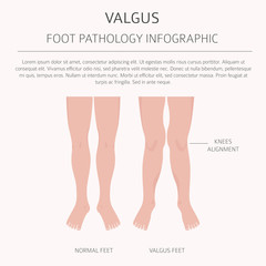 Foot deformation as medical desease infographic. Valgus and varus defect