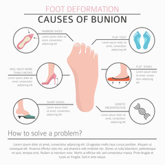 Foot deformation as medical desease infographic. Causes of bunion