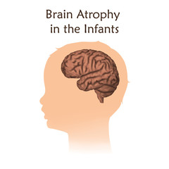Brain atrophy in the infants. White background. Silhouette of child head.