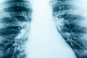 X-Ray Image Of Human Healthy Chest MRI close-up