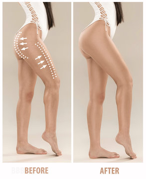 Woman's buttocks before and after plastic surgery