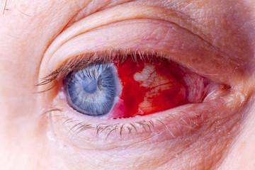 Bloodshot eye. Close-up macro image of a very red bloody eyeball.