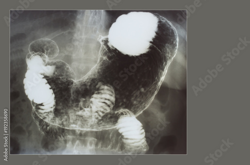 Stomach x ray with barium contrast medium stock photo and royalty stomach x ray with barium contrast medium ccuart Choice Image