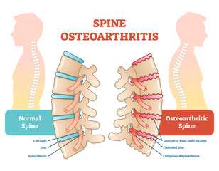 Spine osteoarthritis anatomical vector illustration diagram