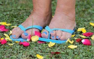 Deformed Bare feet in blue flip-flops of a woman standing on grass with petals of rose