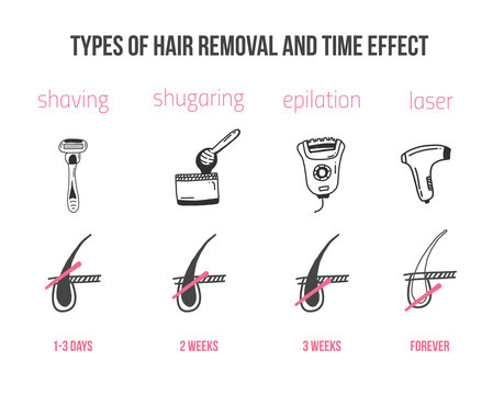 Types of hair removal with follicle infographics in flat linear style. Epilation treatment for women