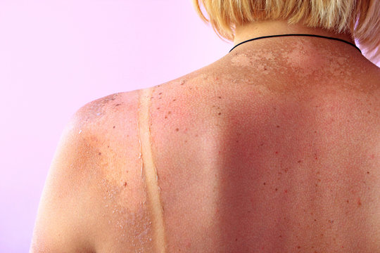Traces of sunburn on the back of a woman. Female body