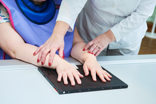 hand fracture xray diagnosis