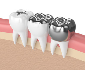 3d render of teeth with different types of dental amalgam filling