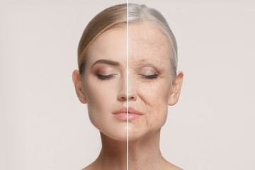 Comparison. Portrait of beautiful woman with problem and clean skin, aging and youth concept, beauty treatment Wall mural