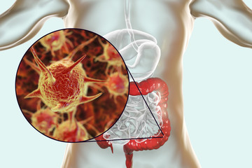 Parasitic infection of intestine, 3D illustration showing close-up view of an abstract parasite and anatomy of human digestive system