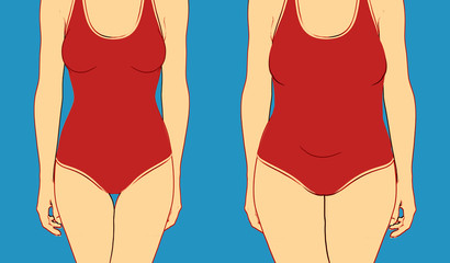 illustration of two women body