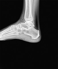 Right ankle x-ray. Side scan