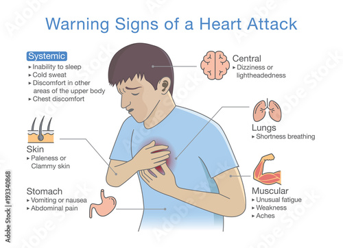 diagram about warning signs of a heart attack illustration about