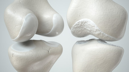 Healthy and osteoarthritis-covered knee - 3D Rendering