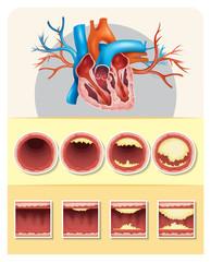 Diagram showing fat in human heart