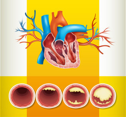 Heart anatomy and fat in vein