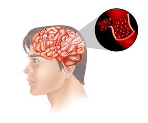Brain cancer in human