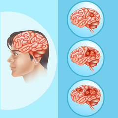 Diagram showing brain cancer in human