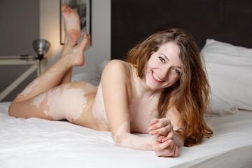 bella ragazza con vitiligine sorride sul letto