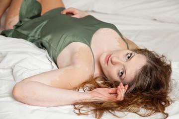 bella ragazza con vitiligine in sottoveste sul letto