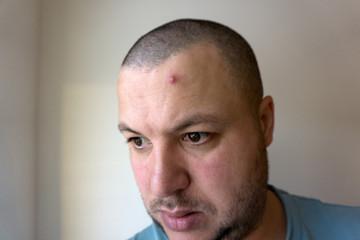 pimple or acne abcess closeup .