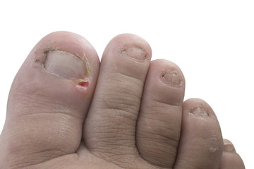 Close up figure out the nail, Accident nail trauma,bleeding toe nails.