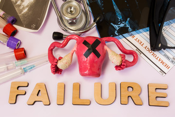Uterus or womb failure concept photo. Uterus with glued black cross is near word failure and set of medical tests (MRI, ultrasound, analysis), diagnostic devices (stethoscope, test tubes, syringes)