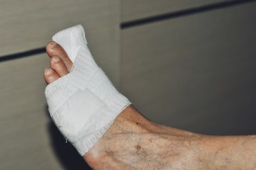 Close-up Of A Orthopedist Fixing Plaster On Injured woman's Foot in hospital, Splint for treating foot injuries. Health care and medical treatment concept